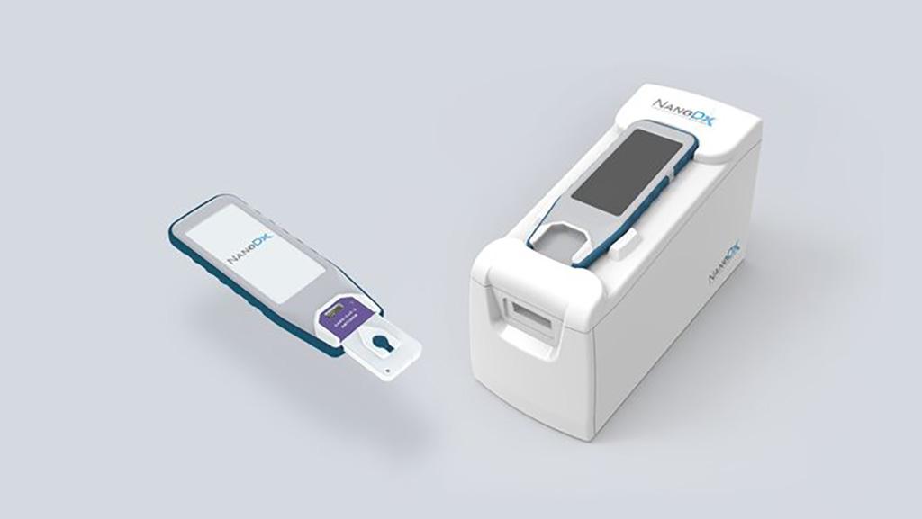 Imagen: La prueba COVID-19 de dos minutos utiliza tecnología de nanosensores para detectar la presencia de infección por SARS-CoV-2 en la sangre en los POC (Fotografía cortesía de NanoDx, Inc.)