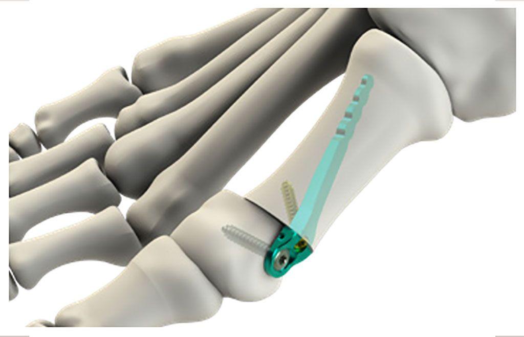 Imagen: El microimplante de titanio, miniBunion, endereza el dedo gordo del pie (Fotografía cortesía de CrossRoads Extremity Systems)