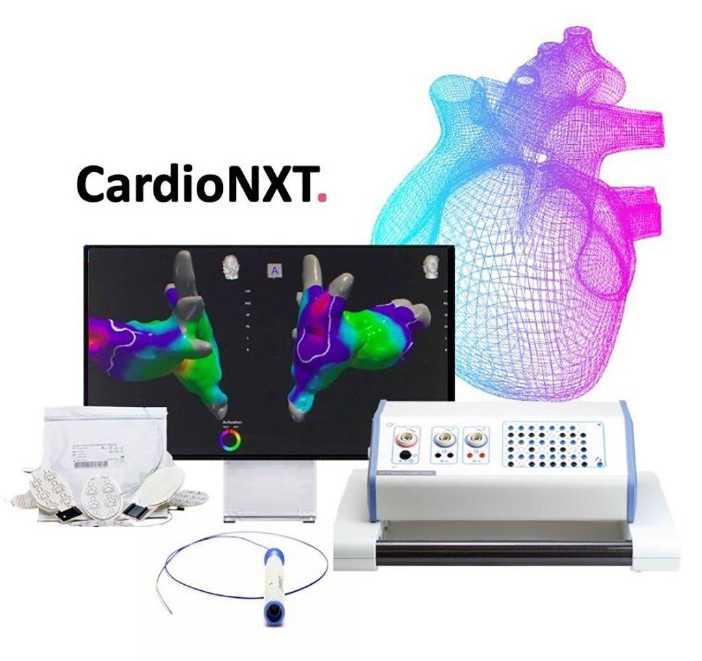Imagen: El sistema CardioNXT (Fotografía cortesía de CardioNXT)