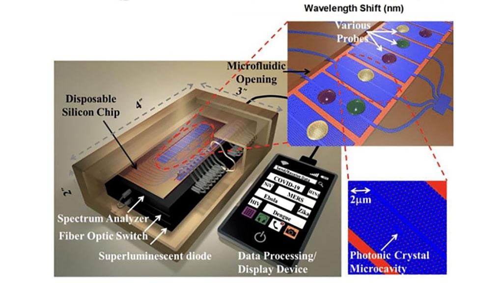 Imagen: Una plataforma de detección óptica de muestras para un diagnóstico rápido de la COVID-19 (Fotografía cortesía de Asghari et al.)