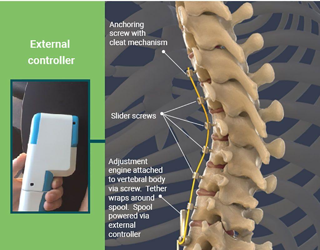 Imagen: Un sistema dinámico de VBT trata la escoliosis pediátrica (Fotografía cortesía de Auctus Surgical)