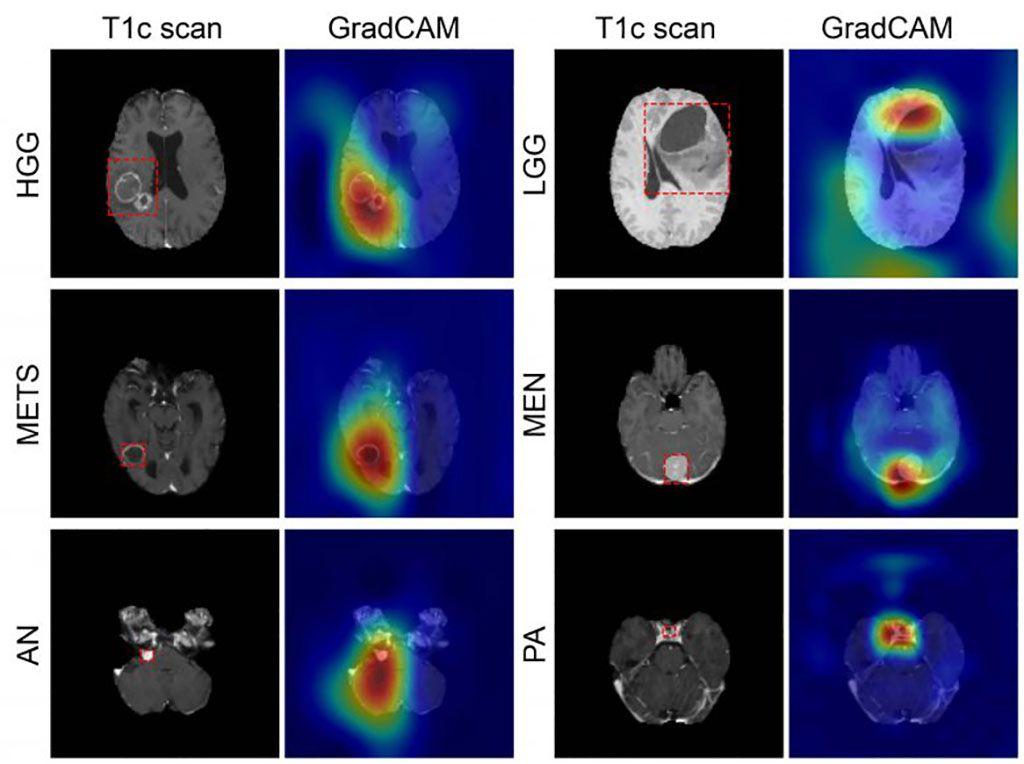 Imagen: Los colores de los mapas de color de GradCAM muestran la predicción de tumores (Fotografía cortesía de WUSTL)
