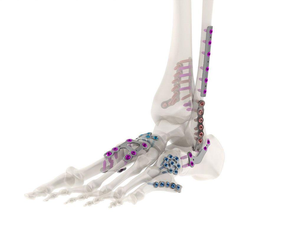 Imagen: Un sistema de recubrimiento de titanio presenta piezas anodizadas en color para una fácil identificación (Fotografía cortesía de Tyber Medical)