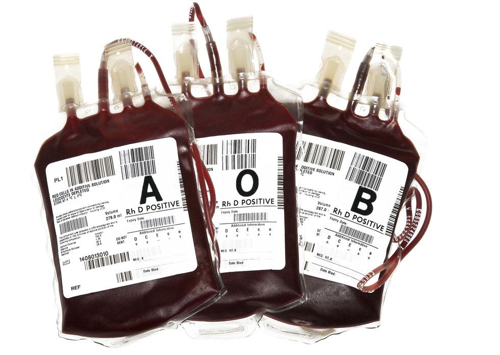 Imagen: Bolsas de transfusión de sangre que contienen diferentes tipos de sangre (Fotografía cortesía de Terinah DoBa).