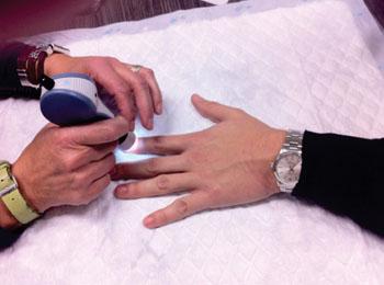 Imagen: Un microscopio portátil, que se coloca manualmente en la yema del dedo de los pacientes para tomar vídeos de la microcirculación en los capilares más superficiales (Fotografía cortesía del Laboratorio de Investigación de Electrónica / MIT).