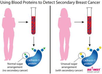 Imagen: Un diagrama de la prueba de sangre diseñada para detectar el cáncer de mama secundario (Fotografía cortesía de Lee Abrey y Nicola Winstone).