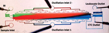 Imagen: Una fotografía del dispositivo de trinquete de microfluidos, impregnado con agua coloreada, para mostrar el patrón de flujo diagonal de la matriz de separación (Fotografía cortesía de la Universidad de la Columbia Británica).