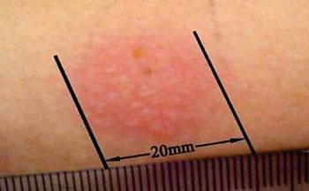 Imagen: Una prueba dérmica de la tuberculina de Mantoux, fuertemente positiva (Fotografía cortesía de Mudnsky).
