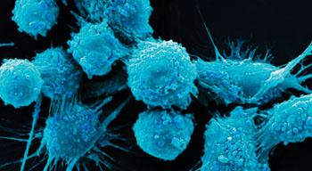Imagen: Una micrografía electrónica de barrido a color (SEM) de las células de cáncer de próstata humano (Fotografía cortesía del Dr. Gopal Murti).