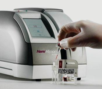 Imagen: El cartucho de análisis para la proteína C-reactiva (PCR) Afinion y el analizador Afinion AS100 (Fotografía cortesía de Alere).