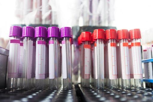 Imagen: De acuerdo con un nuevo estudio, las firmas de biomarcadores en la sangre pueden indicar el riesgo de las personas de desarrollar condiciones de salud relacionadas con la edad (Fotografía cortesía de Getty Images).