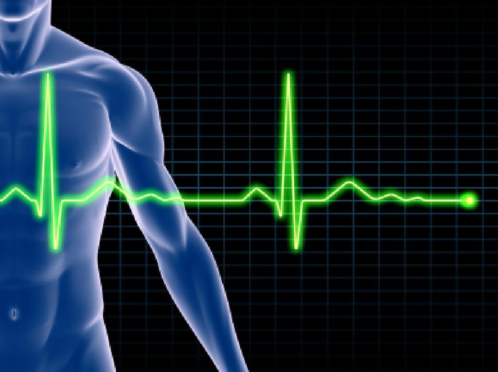 Imagen: Una nueva investigación demuestra que los resultados combinados de cinco pruebas ofrecen una mejor predicción de quiénes desarrollarían enfermedad cardíaca (Fotografía cortesía de iStock).