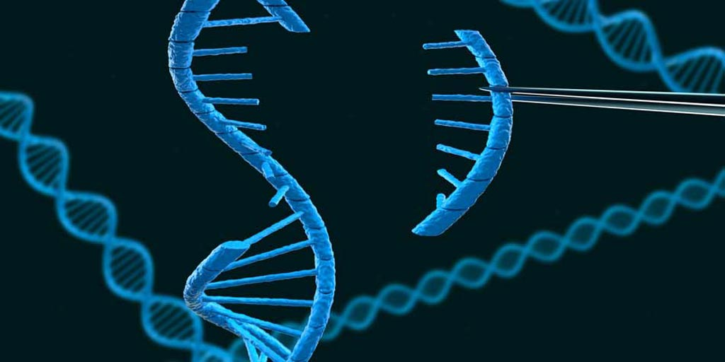 Imagen: De acuerdo con un nuevo estudio, una mutación genética puede acelerar la pérdida de la memoria y las habilidades de pensamiento en las personas que están en riesgo de enfermedad de Alzheimer (Fotografía cortesía de iStock).