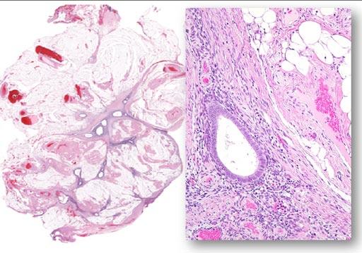 Imagen: Endometriosis en el tejido peritoneal (izquierda) formando una cicatriz. A la microscopía, se compone de glándulas y estroma circundante con inflamación crónica y fibrosis (Fotografía cortesía de Ie-Ming Shih).
