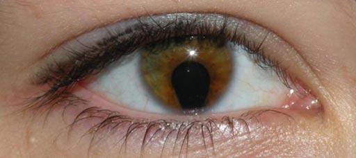 Imagen: Los científicos han identificado una mutación genética que contribuye a la pérdida de visión en los niños (Fotografía cortesía de la Universidad de Edimburgo).