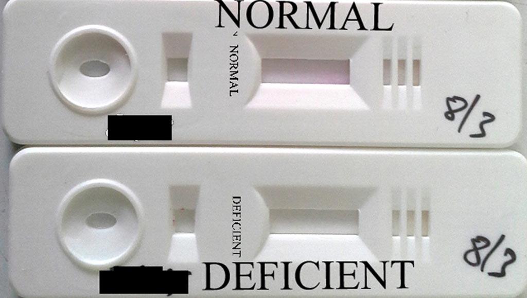 Imagen: La prueba rápida Care-Start G6PD RDT (Fotografía cortesía de Access Bio).
