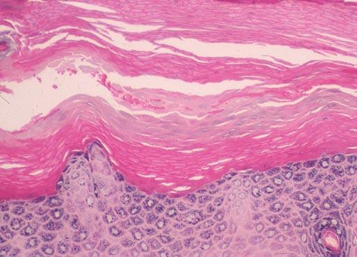 Imagen: Una biopsia de la planta del pie mostrando una capa granular recuperada y una capa de paraqueratosis intercalada entre el viejo estrato corneum ortoqueratótico y una capa ortoqueratótica reestablecida (Fotografía cortesía de SAMJ).