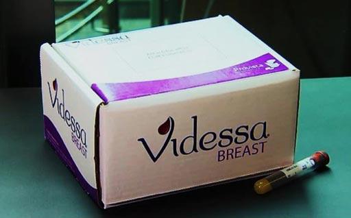 El análisis de sangre Videssa Breast para los biomarcadores proteicos para el cáncer de mama, evalúa 11 proteínas biomarcadoras en suero y 33 autoanticuerpos asociados a tumores (Fotografía cortesía de Provista Diagnostics).