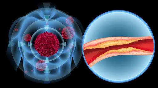 Imagen: Un nuevo estudio muestra que el nivel de colesterol sérico preoperatorio puede tener un impacto significativo en el pronóstico de pacientes con carcinoma de células renales (Fotografía cortesía de Getty Images).