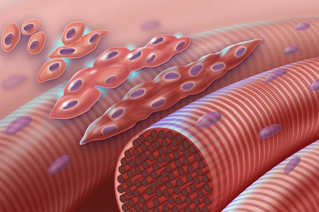 Imagen: Fusión de mioblastos. Este gráfico representa mioblastos normales (células musculares tempranas con un único núcleo) que se fusionan para formar miocitos (células musculares multinucleadas) durante la miogénesis. En el síndrome de Carey-Fineman-Ziter esta cascada se interrumpe debido a un defecto en el miomarcador de la proteína de membrana (MYMK) requerido para la fusión célula-célula (Fotografía cortesía de Darryl Leja, NHGRI).