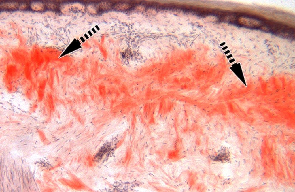 Imagen: Una histopatología de una biopsia de piel en un paciente con amiloidosis. Los grupos de proteínas se muestran en rojo (Fotografía cortesía del profesor Michael Polydefkis).