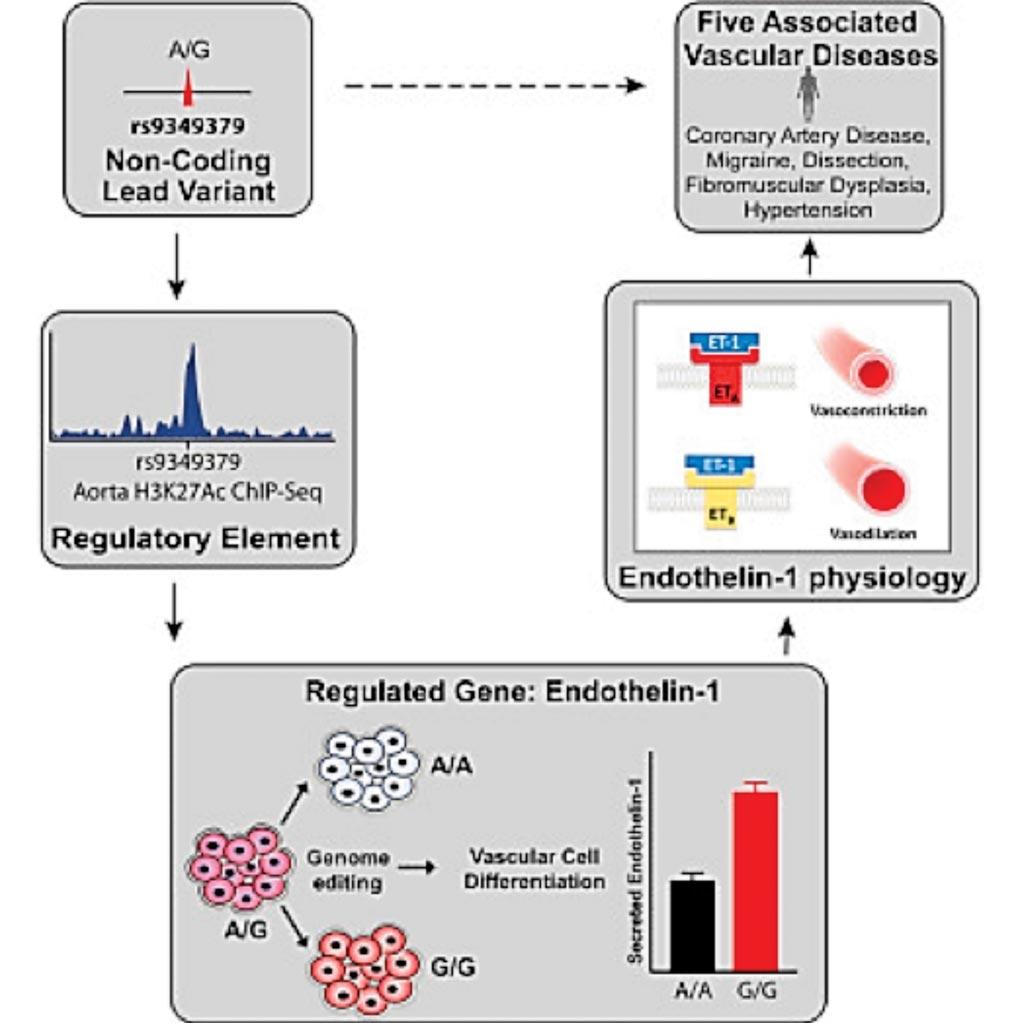 Imagen: Un diagrama de una variante genética asociada con cinco enfermedades vasculares es un regulador distal de la expresión del gen de la endotelina-1 (Fotografía cortesía del Instituto Broad del MIT y la Universidad de Harvard).