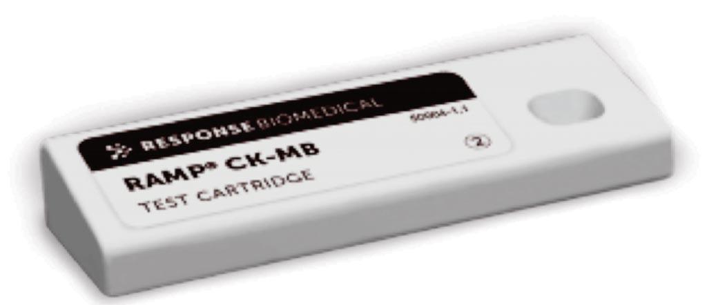 Imagen: Una prueba de diagnóstico rápido para la determinación de los niveles elevados de CK-MB en la sangre, que algunos científicos sugieren puede ser innecesaria (Fotografía cortesía de Response Biomedical).