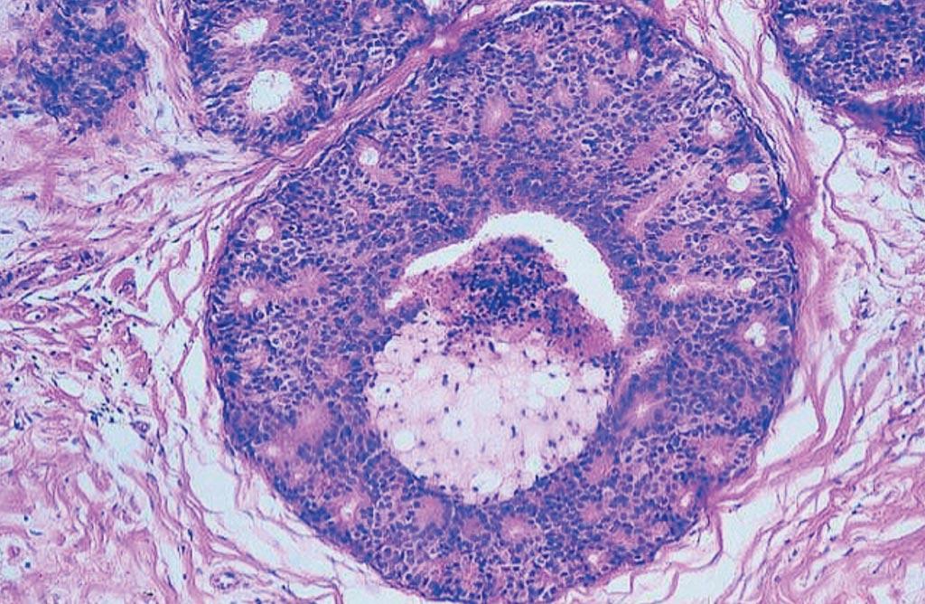 Imagen: Histopatología del cáncer de mama: carcinoma intraductal, tipo comedo, con conducto distendido con una membrana basal intacta y necrosis tumoral central (Fotografía cortesía de Peter Abdelmessieh, DO, MSc).