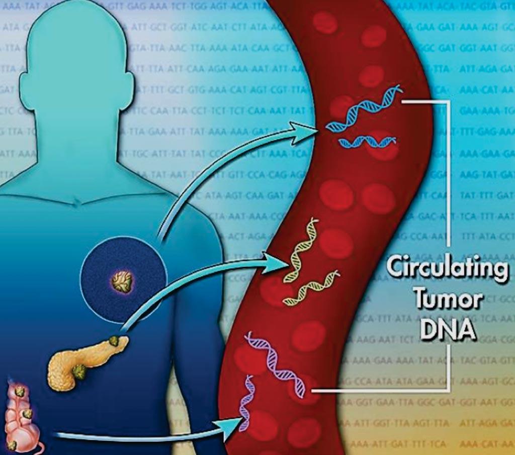 Imagen: La prueba de Carga de Mutación Tumoral detecta el ADN tumoral libre de células en la sangre y permite la estratificación de los pacientes no elegibles para que les hagan una biopsia del tumor (Fotografía cortesía del Instituto Nacional de Cáncer de los EUA).