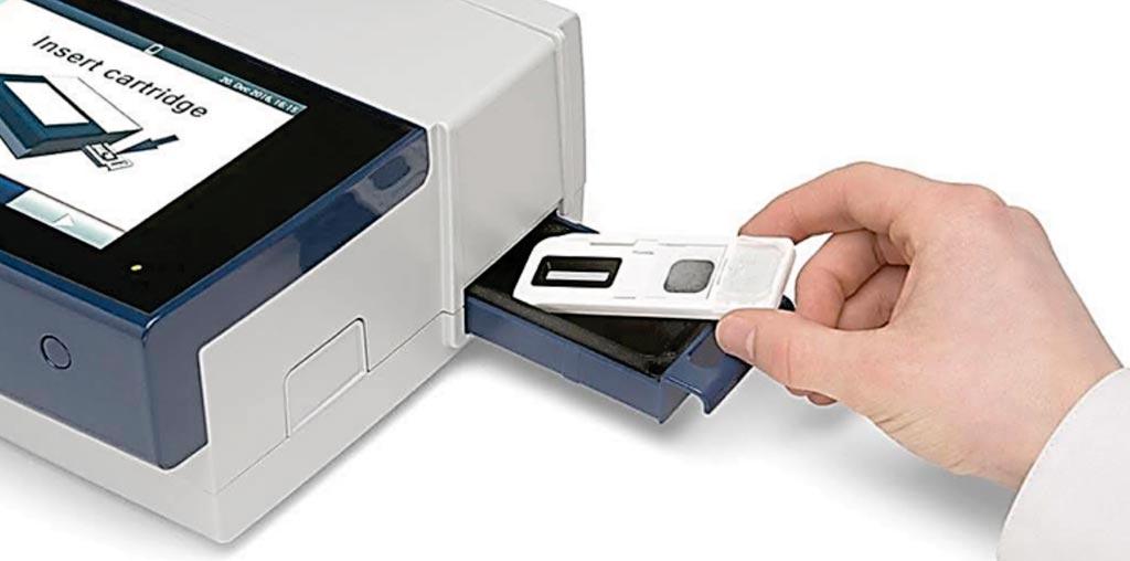 Imagen: El cartucho de recolección de la muestra de la huella digital y la unidad portátil de análisis Reader 1000 para la detección de drogas (Fotografía cortesía de Intelligent Fingerprinting).