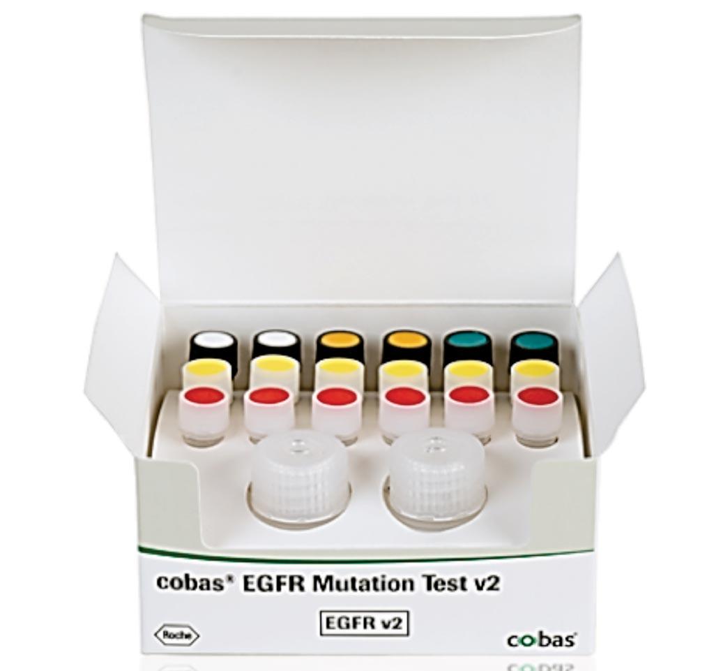 Imagen: La prueba cobas de mutación de EGFR v2 CE-IVD, identifica el gen del receptor del factor de crecimiento epidérmico (EGFR) en el ADN de los pacientes con cáncer de pulmón de células no pequeñas (NSCLC) (Fotografía cortesía de Roche Molecular Diagnostics).