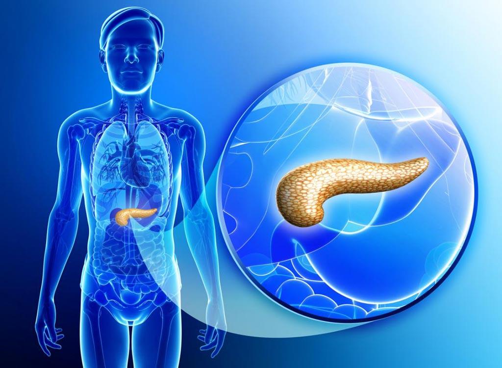 Imagen: Una nueva prueba genética fue altamente sensible para determinar qué quistes pancreáticos tienen más probabilidades de estar asociados con uno de los tipos más agresivos de cáncer de páncreas (Fotografía cortesía de Shutterstock).