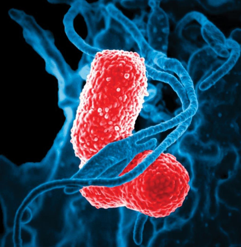 Imagen: La microfotografía electrónica de barrido digitalmente coloreada (SEM) representa un glóbulo blanco humano (WBC) de color azul, conocido específicamente como un neutrófilo, que interactúa con dos bacterias de Klebsiella pneumoniae multirresistentes, de color rosa, en forma de bastón, (MDR) (Fotografía cortesía de los CDC).