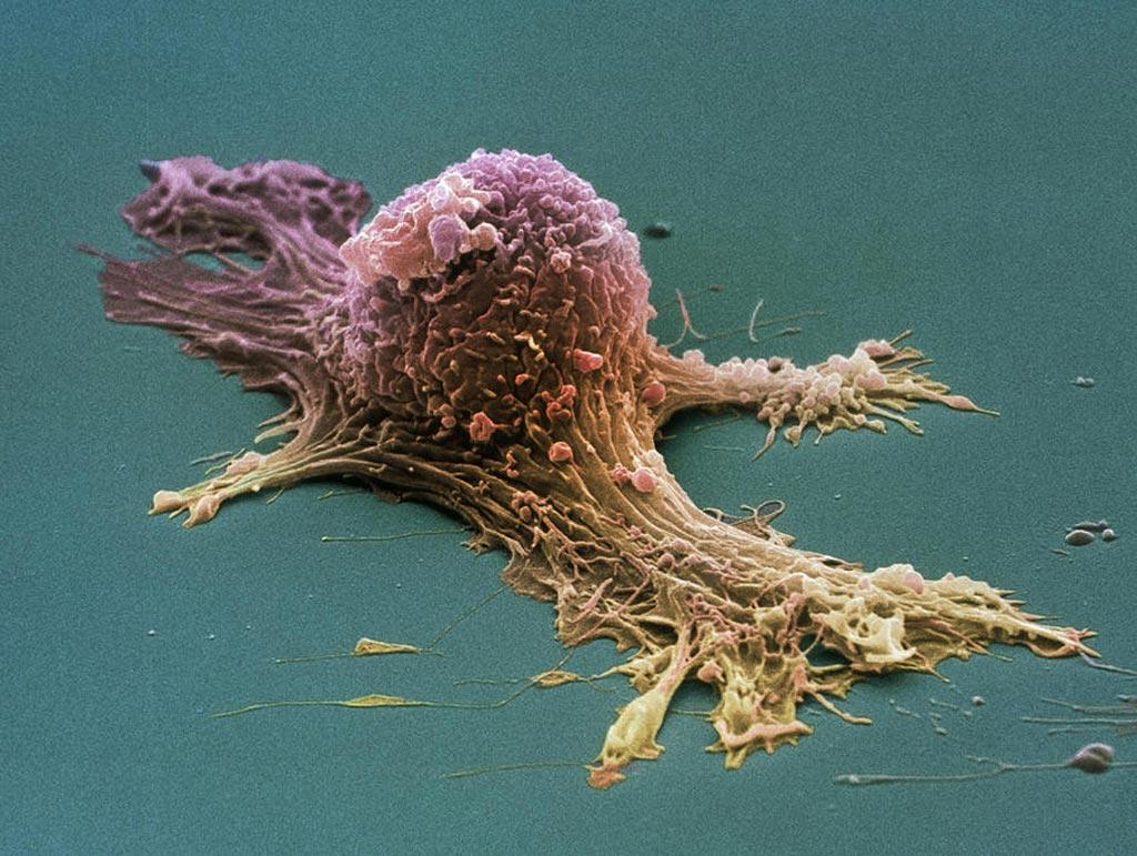 Imagen: Una microfotografía electrónica de barrido (SEM) de una célula de cáncer de ovario (Fotografía cortesía de Steve Gschmeissner / SPL).