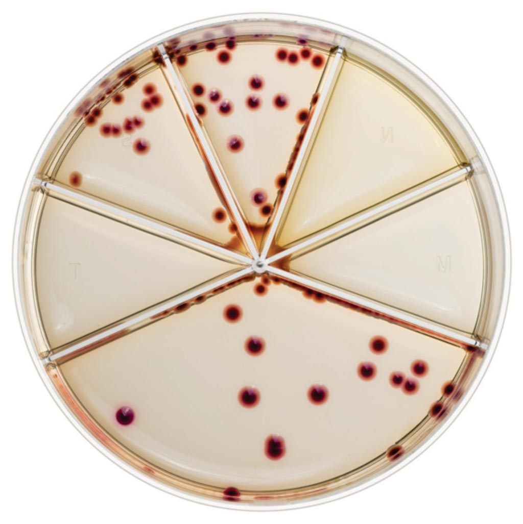 Imagen: El kit Flexicult SSI-Urinary es un agar cromogénico que permite la identificación, la cuantificación y la realización de pruebas de susceptibilidad de los patógenos del tracto urinario (Fotografía cortesía de SSI DIagnostica).