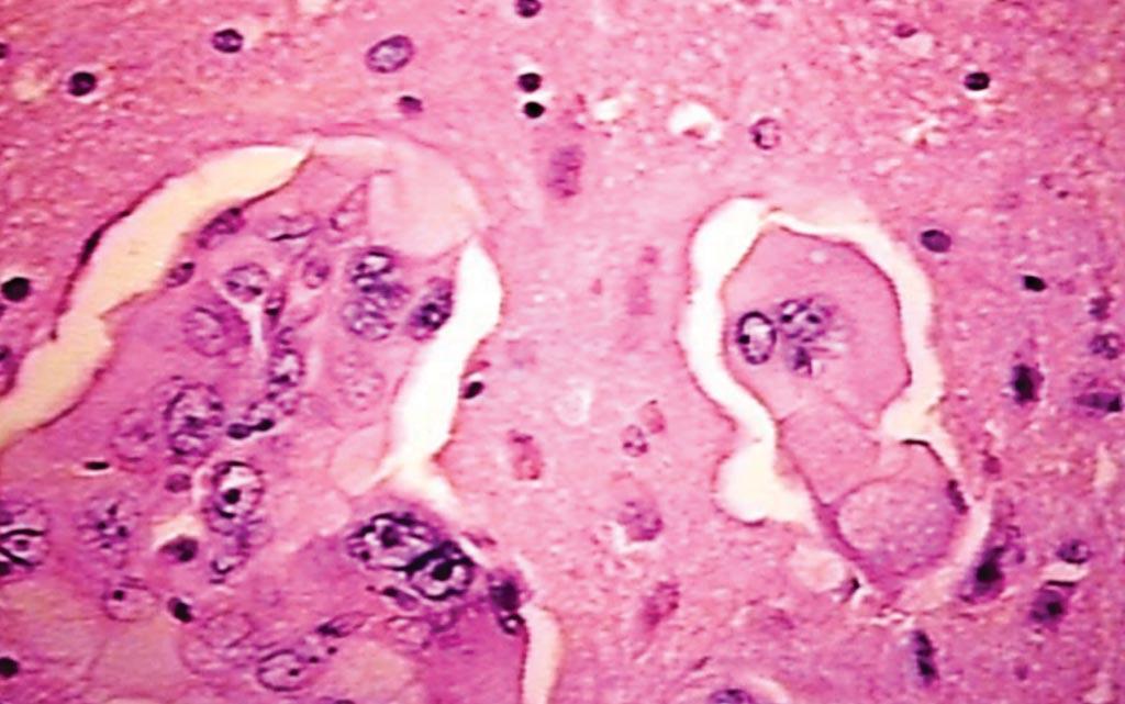 Imagen: una histopatología de un cerebro que muestra lesiones metastásicas de un paciente con cáncer de pulmón no microcítico (Fotografía cortesía de Peter Anderson).