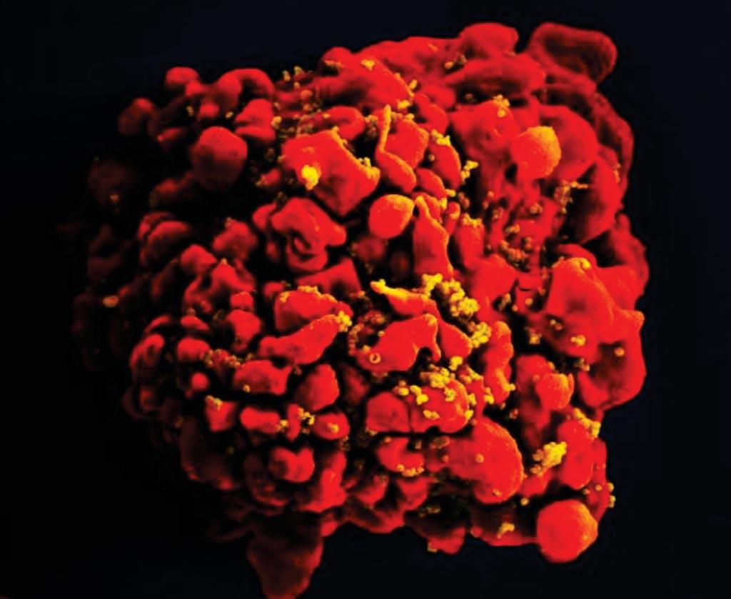 Imagen: Una microfotografía electrónica de barrido (SEM) coloreada digitalmente que representa una única célula H9-T, de color rojo, que había sido infectada por numerosas partículas de virus de la inmunodeficiencia humana (VIH) con forma de esferoide y color mostaza, que se pueden ver unidas a la membrana de la superficie de la célula (Fotografía cortesía del Instituto Nacional de Alergias y Enfermedades Infecciosas de los EUA).
