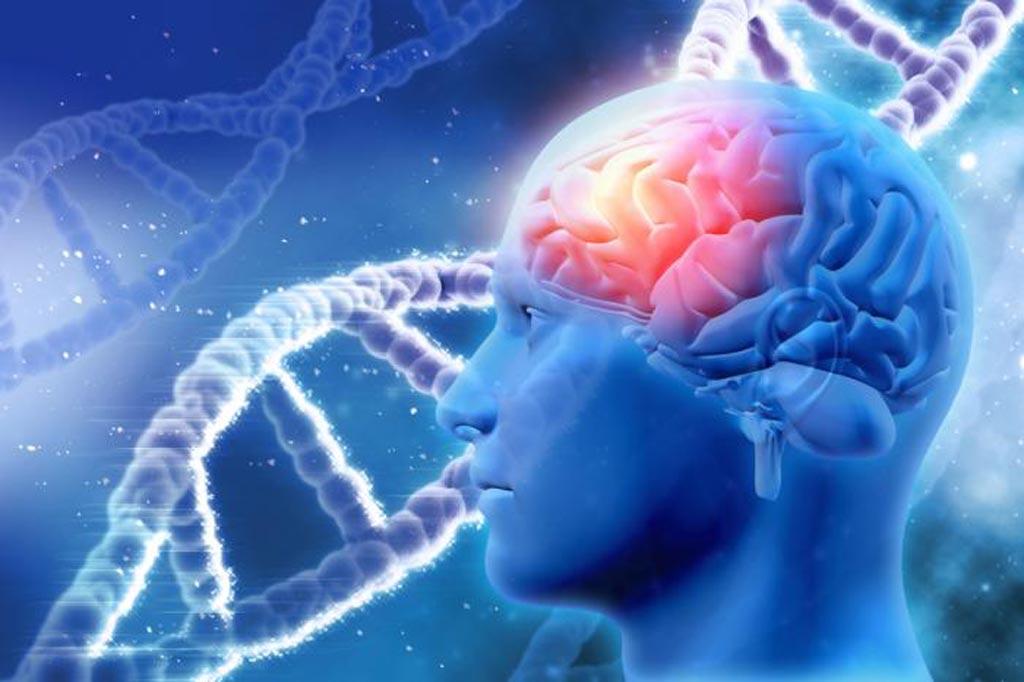 Imagen: Los investigadores han identificado genes que podrían ser precursores de la enfermedad de Alzheimer y que podrían ser objetivos de nuevos tratamientos que pueden retrasar o prevenir la aparición de la enfermedad (Fotografía cortesía de Medical News Today).