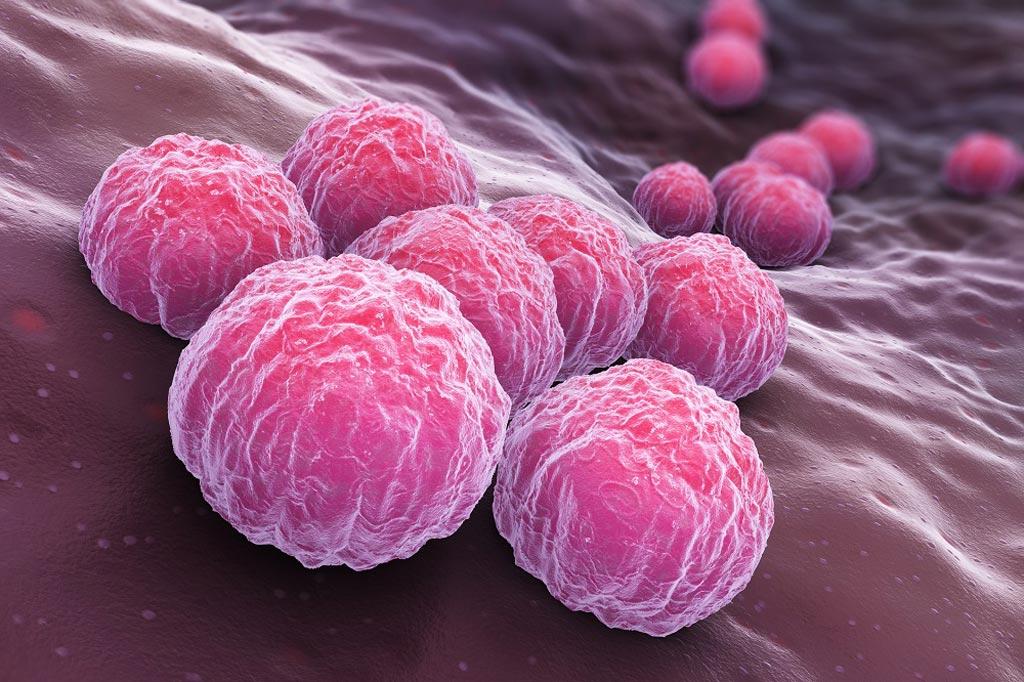 Imagen: Chlamydia trachomatis, la infección de transmisión sexual (ITS) más frecuente (Fotografía cortesía de Getty Images).