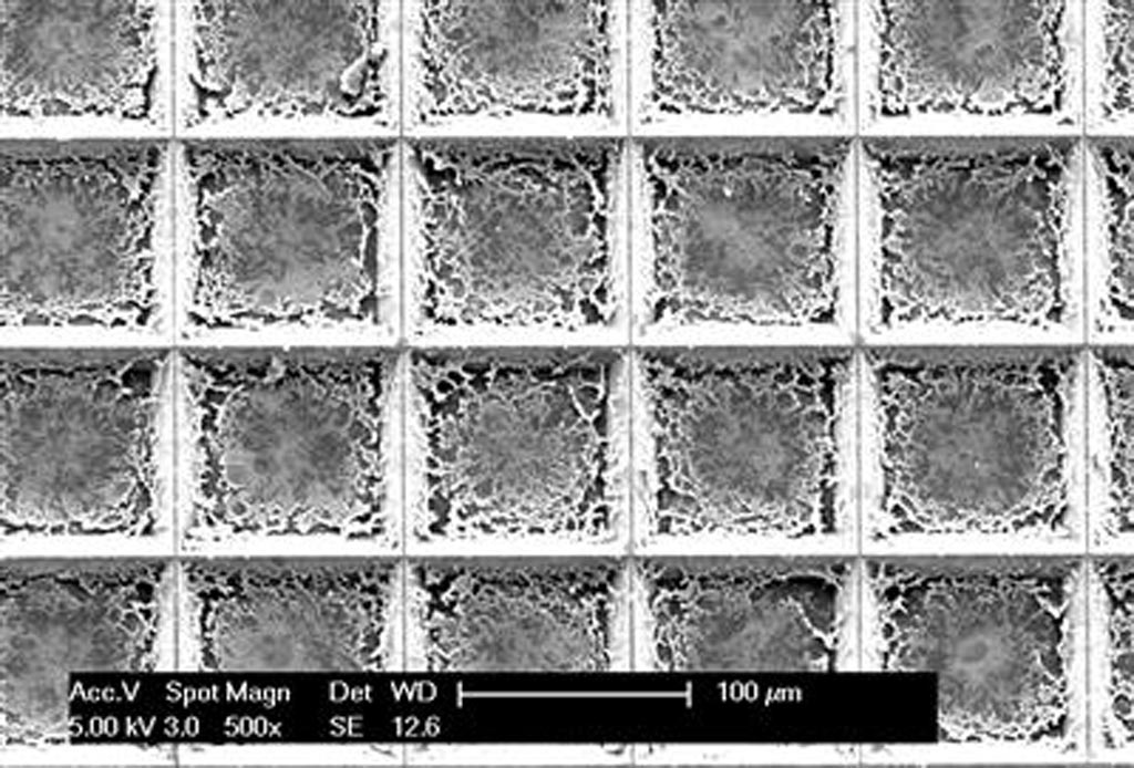 Imagen: La herramienta de expresión de genes espaciales pixelada puede analizar una muestra de tejido completa e identificar las células cancerosas en un proceso que se demora menos de dos horas (Fotografía cortesía de la Universidad de Illinois).