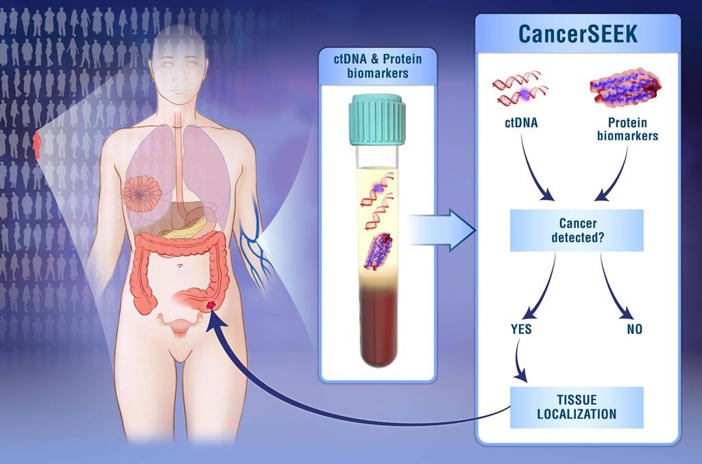 Imagen: La prueba para múltiples analitos, CancerSEEK, evalúa simultáneamente los niveles de ocho proteínas cancerígenas y la presencia de mutaciones genéticas del cáncer a partir del ADN circulante en la sangre (Fotografía cortesía de Elizabeth Cook y Kaitlin Lindsay, Universidad Johns Hopkins).