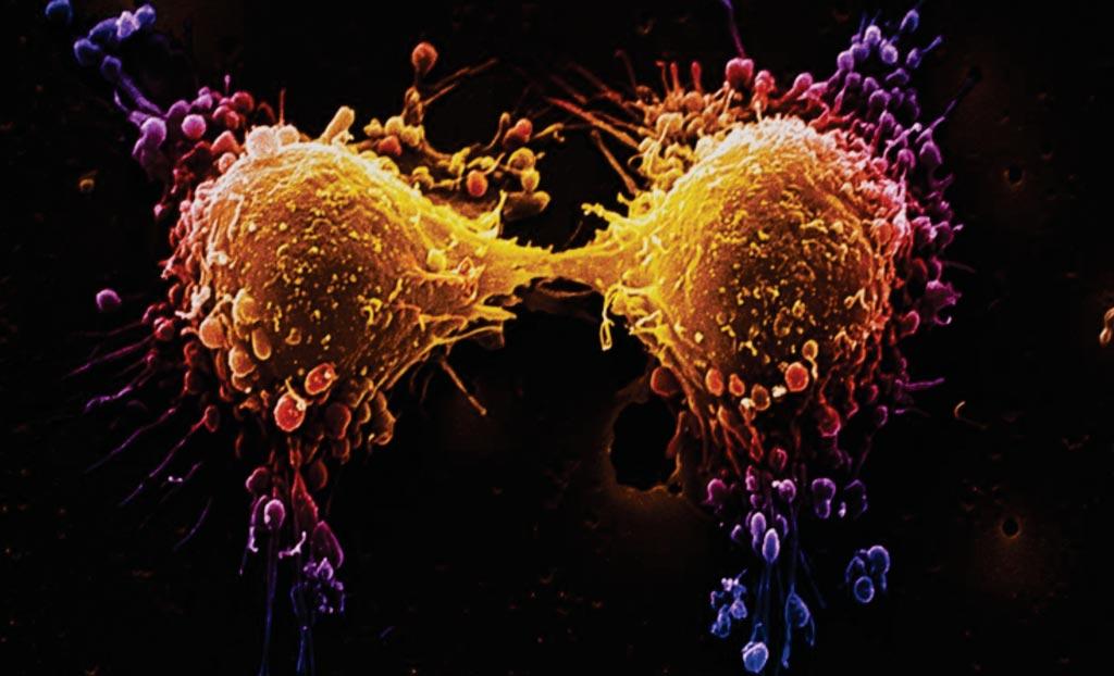 Imagen: División celular de una célula de cáncer de próstata, capturada en una microfotografía electrónica de barrido (SEM) a color (Fotografía cortesía de Getty Images).
