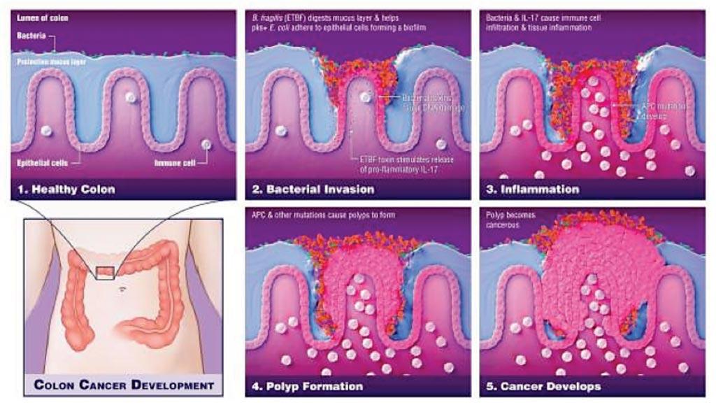 Imagen: Diagrama de la forma cómo las bacterias juegan un papel crítico en el desarrollo del cáncer de colon (Fotografía cortesía de Elizabeth Cook).