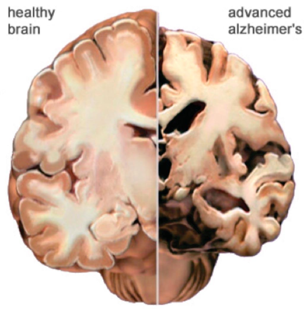 Imagen: Un corte transversal de un cerebro sano comparado con un cerebro de un paciente con enfermedad de Alzheimer (Fotografía cortesía de la Asociación de Alzheimer).