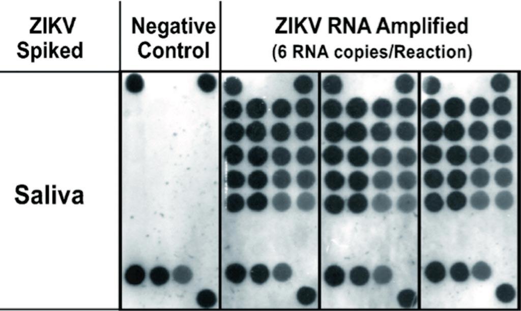 Imagen: Detección en la saliva del virus del Zika utilizando LAMP de transcripción inversa junto con análisis de transferencia de punto inverso (Fotografía cortesía del Colegio de Odontología de la Universidad de Nueva York).