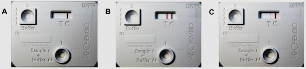 Imagen: Resultados representativos no-reactivos (A), fuertemente reactivos (B) y débilmente reactivos (C) de la plataforma de doble vía (DPP) para la detección de la leptospirosis (Fotografía cortesía de la Fundación Oswaldo Cruz).
