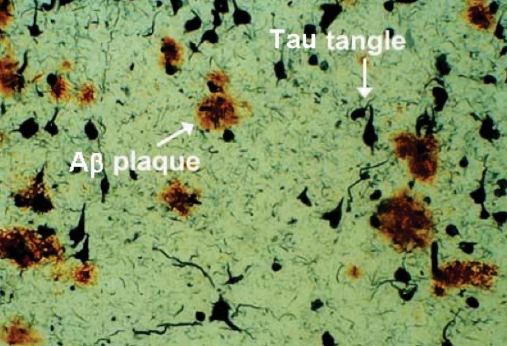 Imagen: La muestra de tejido postmortem del cerebro de un paciente con la enfermedad de Alzheimer (EA) revela una patología que incluye placas de beta amiloide y ovillos de Tau (Fotografía cortesía del Dr. Dale Bredesen).