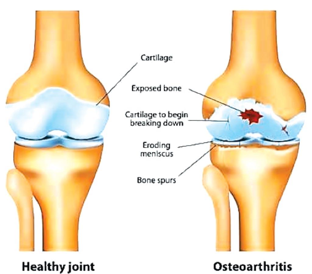Imagen: Una comparación gráfica de una articulación sana y una con osteoartritis (Fotografía cortesía de European Union Cordis).