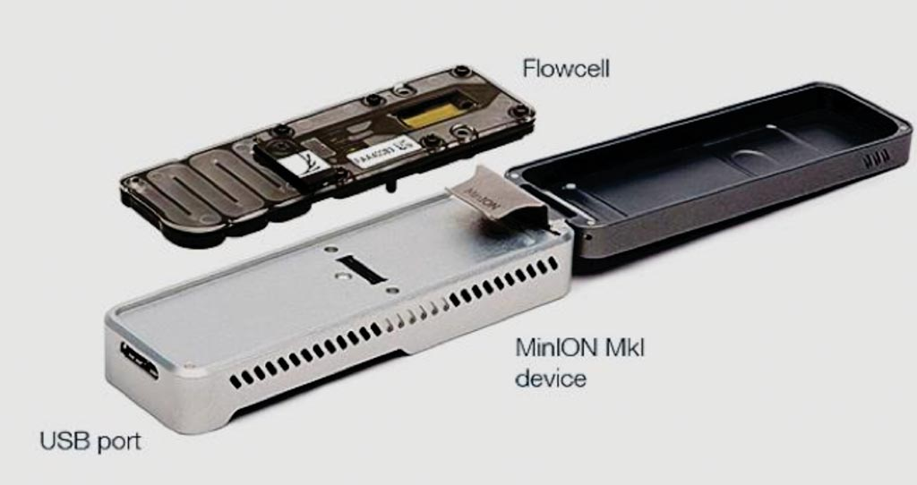 Imagen: El MinION es el único dispositivo portátil en tiempo real para la secuenciación de ADN y ARN (Fotografía cortesía de Oxford Nanopore Technologies).