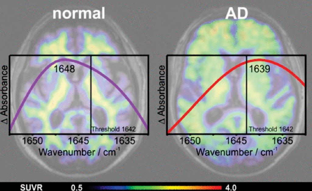 Imagen: La determinación de la distribución de la estructura secundaria del amiloide-beta (Aβ) en el plasma sanguíneo mediante un sensor de inmuno-IR se correlaciona con los exámenes de TEP y los marcadores en el LCR de los pacientes con enfermedad de Alzheimer (EA), y tiene un potencial de ser un biomarcador exacto, simple y mínimamente invasivo para la detección temprana de la EA (Fotografía cortesía de la Universidad del Ruhr en Bochum).